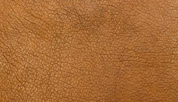 Синдром жирафа: пигментные пятна на коже