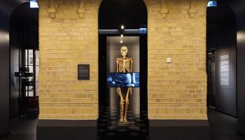 Pārmaiņas: Anatomijas muzejs gaida atvēršanu, Medicīnas vēstures muzejs - pārdefinēšanu