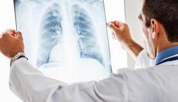 Pārskatīs slimības lapu apmaksas kārtību
