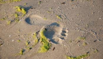 Плоскостопие: чем оно опасно для позвоночника и как его лечить?