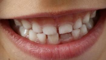 Новые зубы и конечности у человека - несбыточная фантастика?